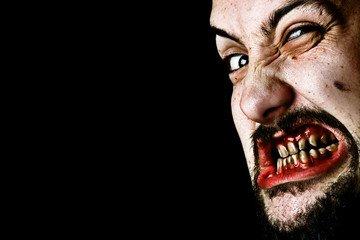 Scary rotten teeth